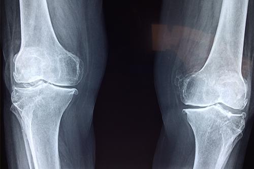 Sore knees